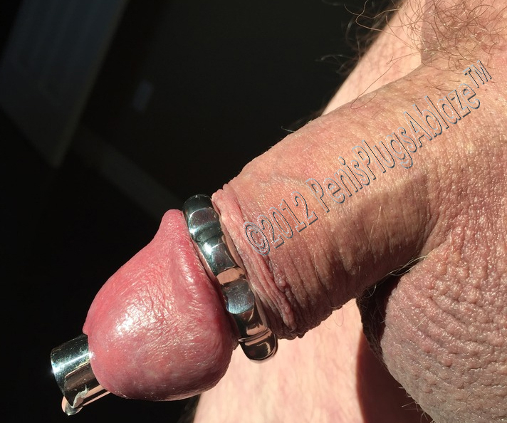 What Does The Scar Of A Circumcised Penis Look Like